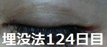 二重まぶた整形大阪