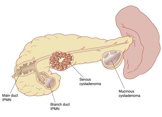 pancreas cyst 4