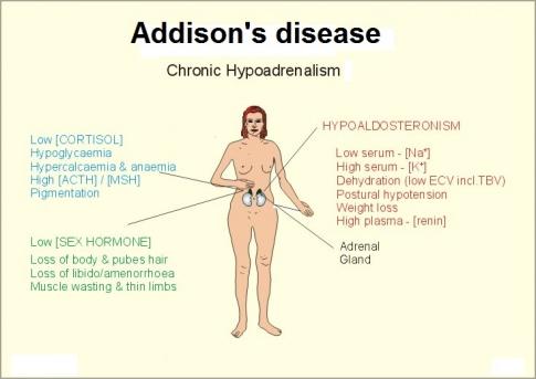 485px-Addisons_dz_20132.jpg