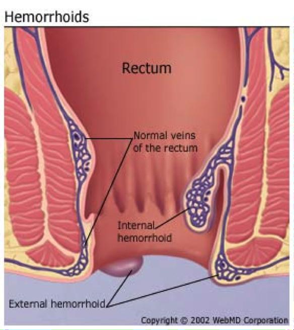 Hemorroids.png