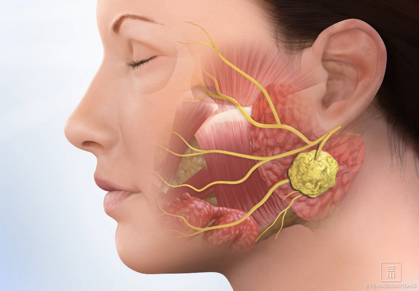 唾液腺腫瘍の問題 - 医療関係資...