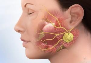 Recurrent-parotid-tumor.jpg