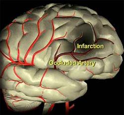 brain_occlusion_250w.jpg