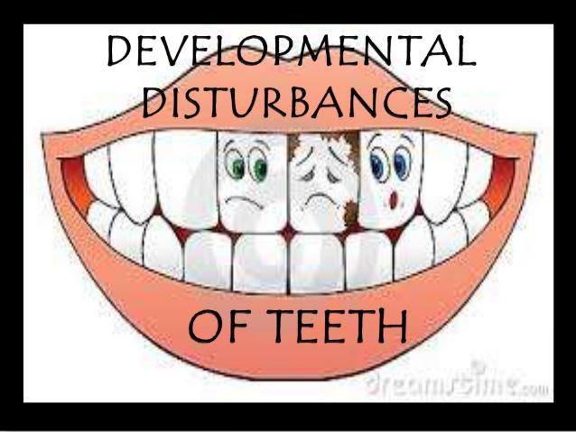 developmental-anomalies-of-teeth-by-variyta-1-638.jpg
