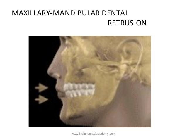 mandibular retrusion