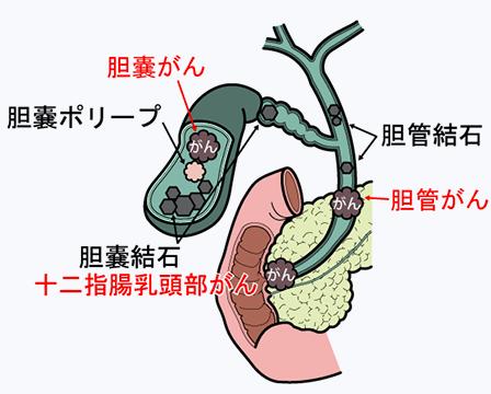 gallbladder02.png