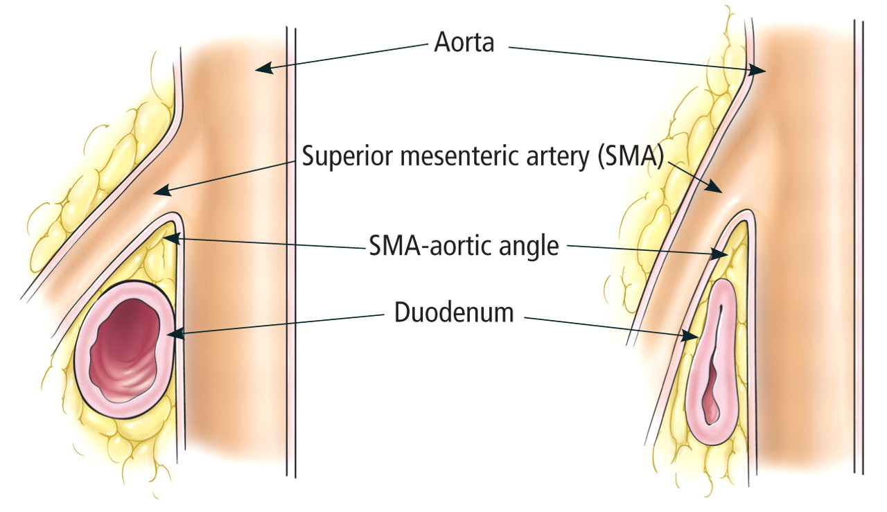 sma+syndrome.jpg