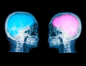 male brain and female brain