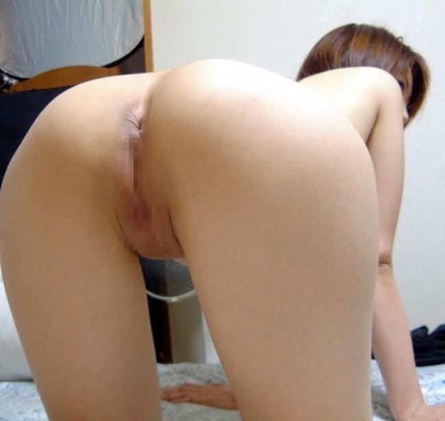 肛門画像 26