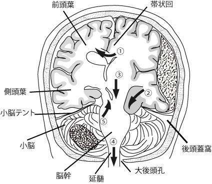 herniation3.jpg